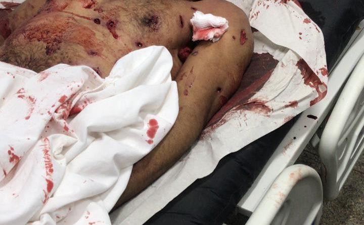 Criminoso Lázaro morre com quase 40 tiros e cerca R$ 4 mil no bolso